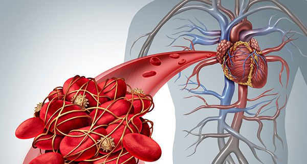 How IVC Filters Can Sometimes Be Dangerous For People